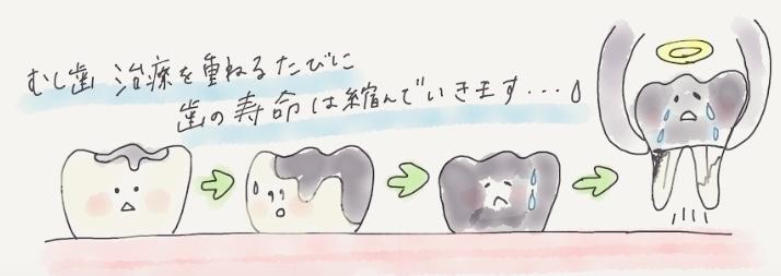 むし歯治療を重ねる度に歯の寿命は短くなります